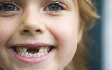 Как правильно вырвать молочный зуб у ребенка