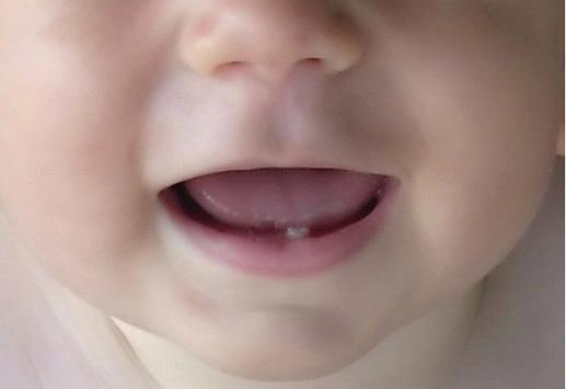 prorezyvanie-zubov-u-detej-posledovatelnost