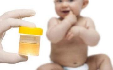 Как собрать мочу у новорожденной девочки