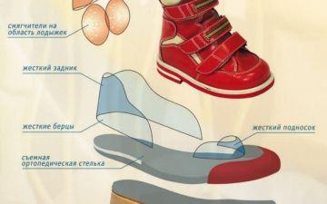 Ребенок ходит на носочках: причины и методы решения проблемы