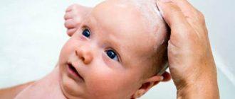 почему-у-ребенка-шелушится-кожа-на-голове