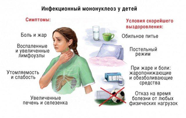 simptomy-mononukleoza-u-detej