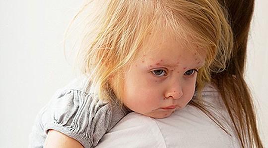 simptomy-kori-u-detej