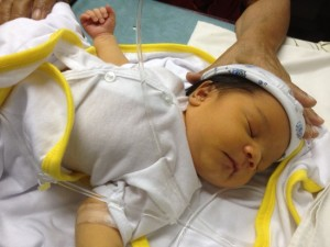 Желтушка новорожденных