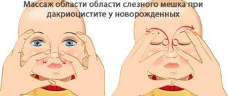 массаж слезного мешка