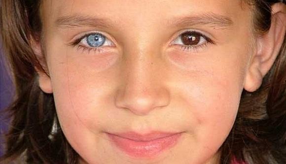 ребенок с разным цветом глаз